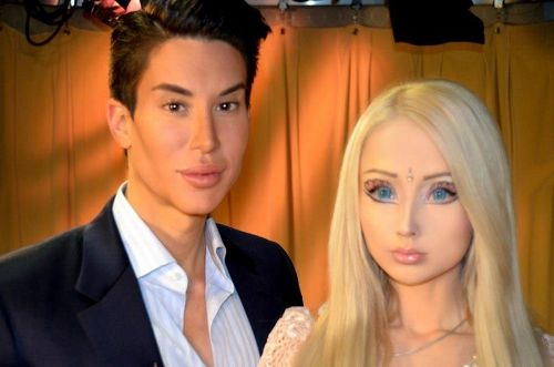 Barbie plastic surgery | Valerya Lukyanova | the barbie surgery | barbie surgery | #3