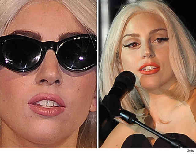 Lady gaga nose job | Celebrity Rhinoplasty | #10