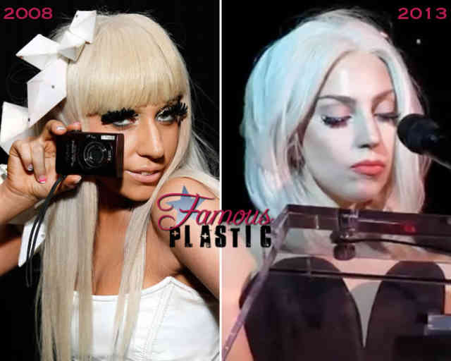 Lady gaga nose job | Celebrity Rhinoplasty | #19