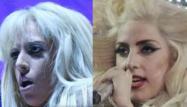 Lady gaga nose job | Celebrity Rhinoplasty | #22