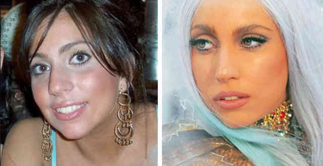 Lady gaga nose job | Celebrity Rhinoplasty | #38
