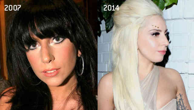 Lady gaga nose job | Celebrity Rhinoplasty | #41