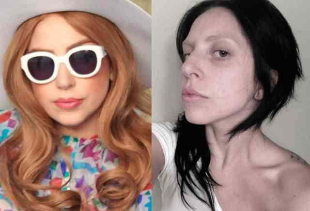 Lady gaga nose job | Celebrity Rhinoplasty | #42