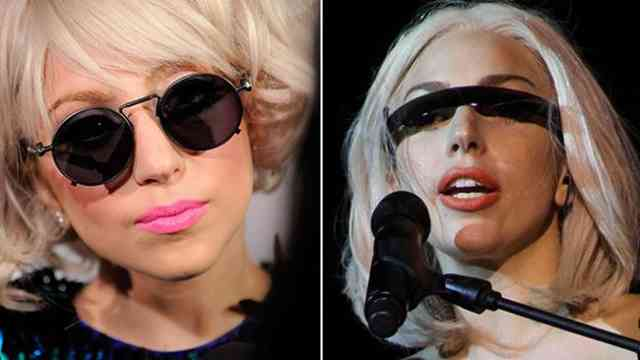 Lady gaga nose job | Celebrity Rhinoplasty | #5