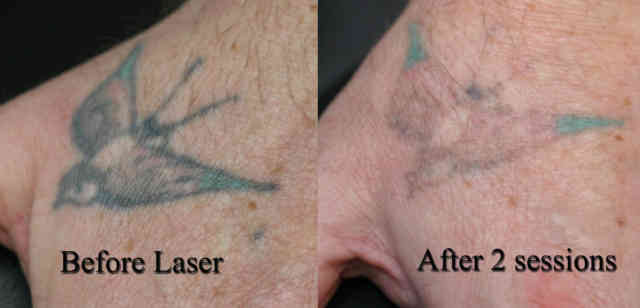 Laser Tattoo Removal | Tattoo Removal | #1