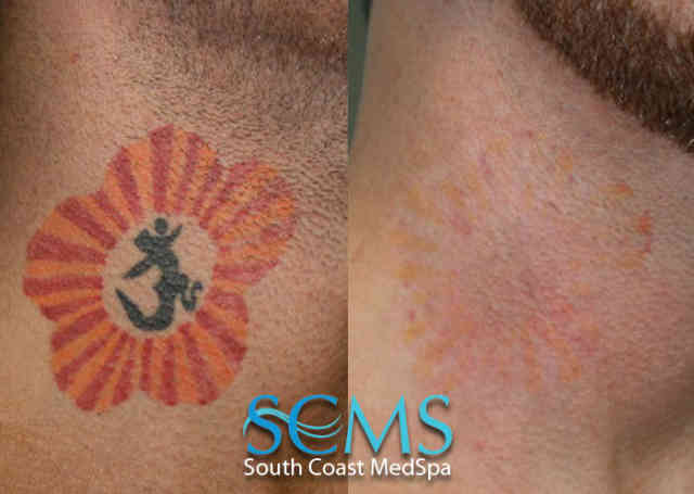 Laser Tattoo Removal | Tattoo Removal | #6