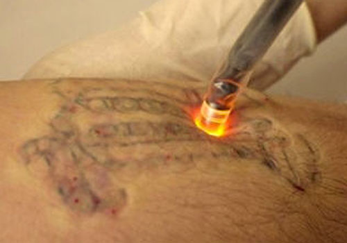 Laser Tattoo Removal | Tattoo Removal | #8